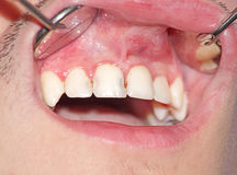 Free Caries Of The Upper Incisors Stock Images - 49632094