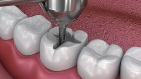 Caries removal, Dental fissure fillings,