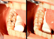 Caries and restoration Stock Photography