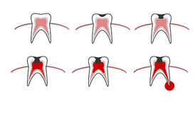Caries stage, tooth decay scheme with caries, stomatological illustration with dental diseases, point by point schematic vector illustration