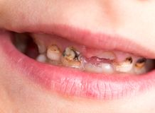Caries on teeth. Part of the human body Stock Photos