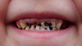 Caries on teeth of the child Royalty Free Stock Images