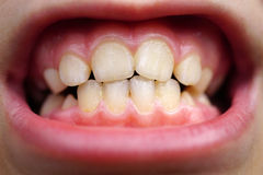 Caries on teeth of the child Stock Photos