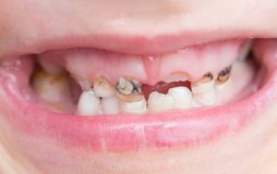 Caries on teeth. Photos in the studio stock photos