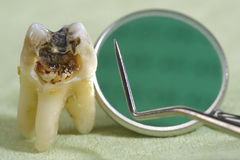 Caries on tooth. Extracted tooth with dental caries Stock Images