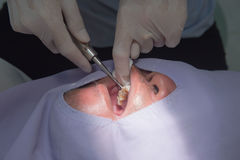 Caries tooth extraction by the dentist. Dentistry in hospital. Caries tooth extraction by the dentist. Dentistry stock images