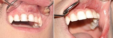 Caries before and after treatment Stock Photo