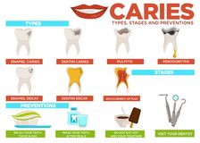 Caries types stages and prevention poster with text vector. Enamel and dental problems, pulpitis and periodontitis, decay and involvement of pulp. Brush teeth stock illustration