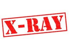 Carimbo de borracha do RAIO X Imagens de Stock