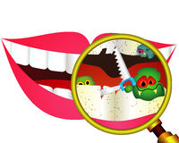 Carious teeth under magnifier Royalty Free Stock Photography