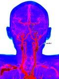 Carotid artery disease Stock Photography