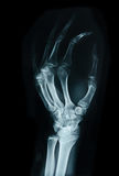 Carpal bones Human X Ray. Carpal bones Human X Ray on black royalty free stock photography