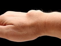 Carpal ganglion cyst. In wrist on black blackground stock image