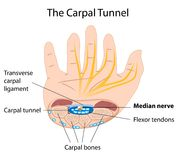The carpal tunnel. Diagram explaining the carpal tunnel syndrome, a common condition among frequent keyboard users, eps8 vector illustration