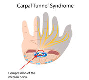 Carpal tunnel syndrome. Compression of median nerve causes numbness in part of hand, eps10 Royalty Free Stock Photography