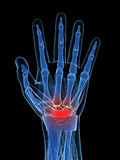 The carpal tunnel syndrome Stock Image