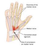 Carpal tunnel syndrome. Site of compression of the median nerve in carpal tunnel syndrome stock illustration