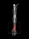 Carpal Tunnel Wrist Pain Stock Photography