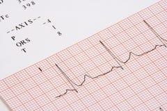 Carta de EKG Imagen de archivo libre de regalías