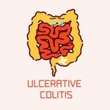 Cartel de la colitis ulcerosa Fotos de archivo libres de regalías