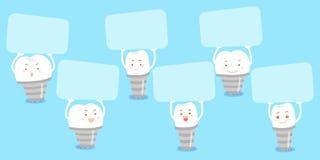 Cartelera de la toma del diente del implante de la historieta stock de ilustración