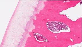 Cartilagine ed osso del ginocchio Fotografia Stock Libera da Diritti