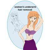 Cartoon beauty woman do epilation before and after. Concept of women`s underarm hair removal. Unwanted hair, superfluous hair. Cartoon beauty woman do epilation Royalty Free Stock Image