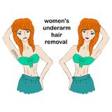 Cartoon beauty woman do epilation before and after. Concept of women`s underarm hair removal. Unwanted hair, superfluous hair. Cartoon beauty woman do epilation Royalty Free Stock Photography
