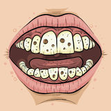 Cartoon Cavities Stock Photography