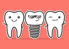 Cartoon dental implant and teeth. Stock Photography