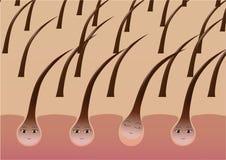 Cartoon hair follicles on the scalp suffer from loss. Vector illustration Royalty Free Stock Photos