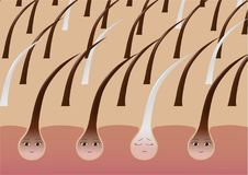 Cartoon hair follicles on the scalp suffering from pigmentation Stock Photo