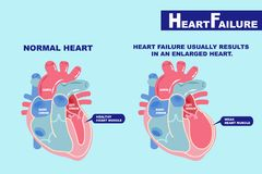 Heart failure concept. Cartoon heart failure concept on the green background Stock Image