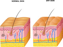 Cartoon illustration of The layers normal skin and dry skin Royalty Free Stock Photo