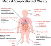 Cartoon illustration of Medical Complication of Obesity Royalty Free Stock Photos