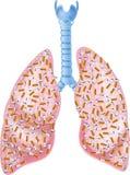 Cartoon illustration of Smokers Lungs Stock Photo