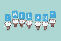 Cartoon implant tooth holding billboard Royalty Free Stock Photography