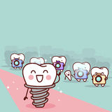 Cartoon implant tooth with paparazzi. Great for health dental care concept Royalty Free Stock Photo