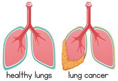 A Cartoon of Lung Condition. Illustration vector illustration