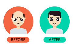 Cartoon man before and after hair transplantation Stock Photography