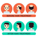 Cartoon man before and after hair treatment Royalty Free Stock Photo