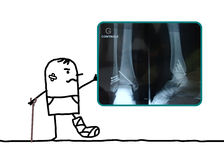 Cartoon man injured his foot showing an X-ray royalty free stock photography