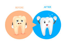 Cartoon tooth character before and after. Whiten yellow teeth. Dental care concept,  illustration Stock Photos