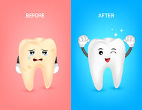 Cartoon tooth character before and after. Whiten yellow teeth. Dental care concept,  illustration Royalty Free Stock Image