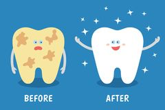 Cartoon tooth before and after cleaning or whitening or dental procedures. Dental illustration for kids. Comparison concept. Dirty and clean teeth. Flat style royalty free illustration
