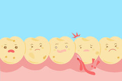 Cartoon tooth decay problem Stock Photos