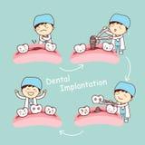 Cartoon tooth dental implantation concept Stock Photos