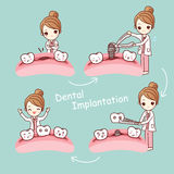 Cartoon tooth dental implantation concept Stock Image