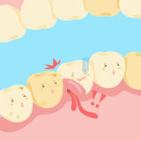 Cartoon tooth with gingival swelling Stock Photo