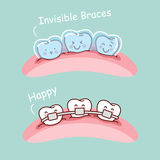 Cartoon tooth with invisible braces. Great for health dental care concept Royalty Free Stock Photos